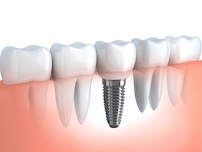 Dental Implant Diagram | Bondi Junction, NSW