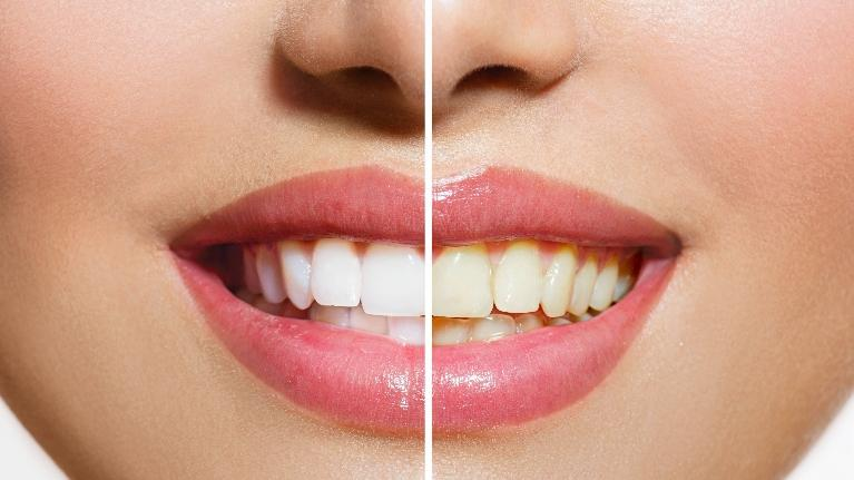 a before and after image of teeth whitening | zoom! teeth whitening bondi junction