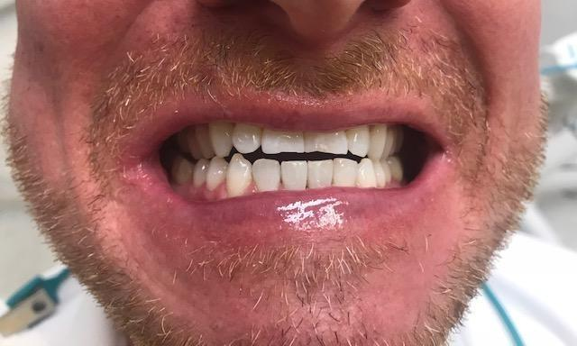 After our teeth whitening treatment | Dentist in the Park