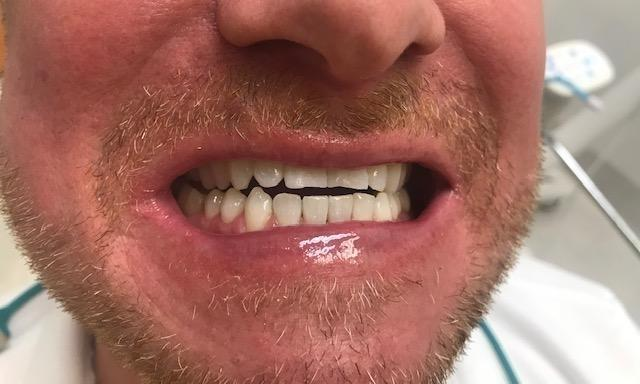 Before our teeth whitening treatment | Dentist in the Park